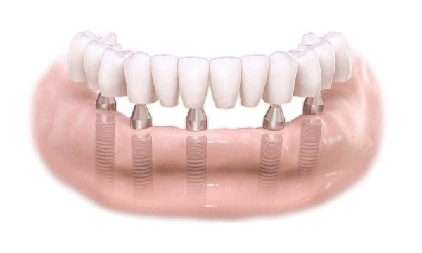 Fixed Implant Supported Bridge