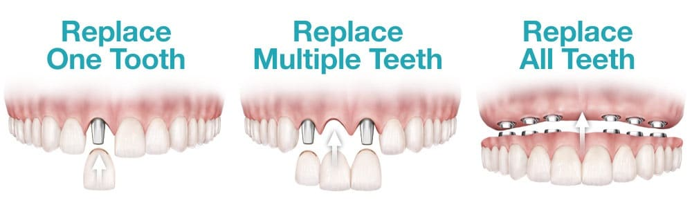 All Teeth Implants Coventry, Fixed Implant Supported Bridge