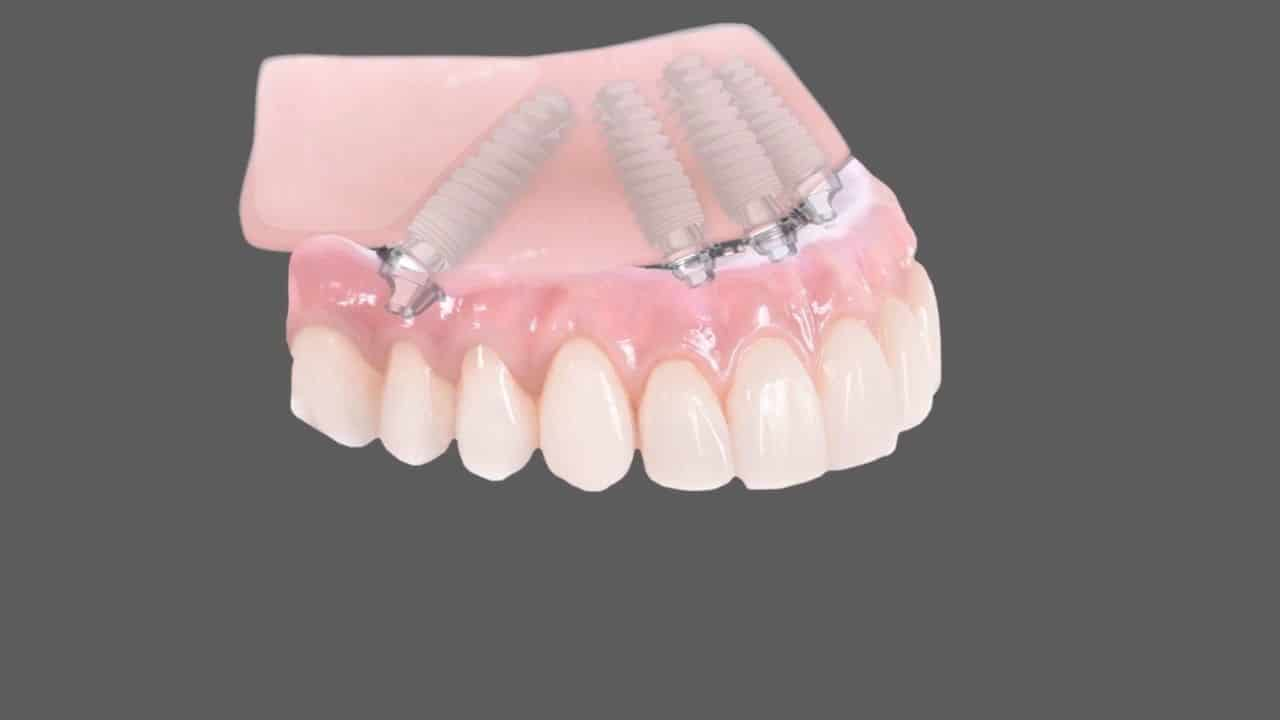 All on 4 dental Implants Coventry, Same Day Teeth Dental