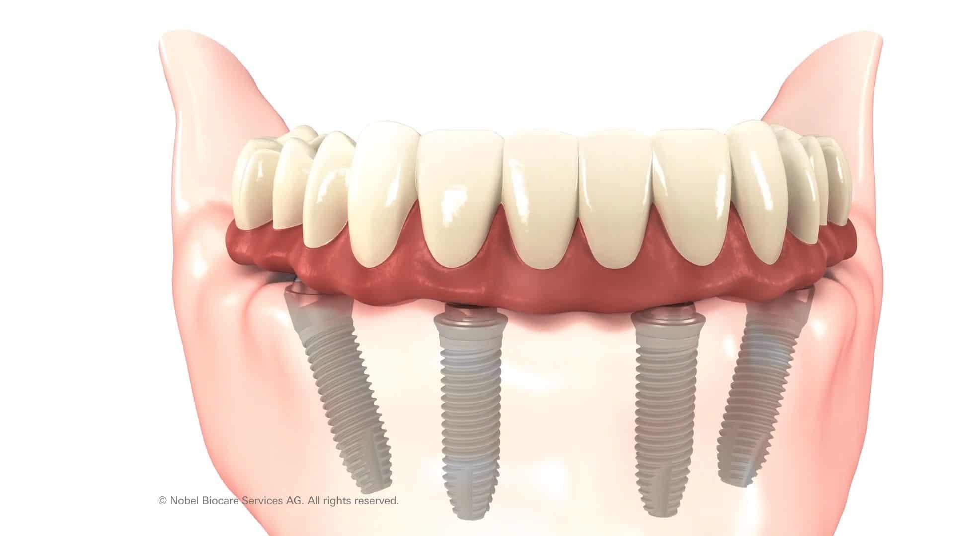All on 4 dental Implants Coventry, Same Day Teeth Dental